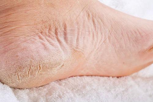 چرا پوست کف پاهایمان ترک ترک می شود؟ ترک خوردن پا