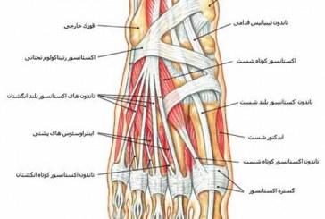 6 نقص رایج در پاها و روش درمان ان